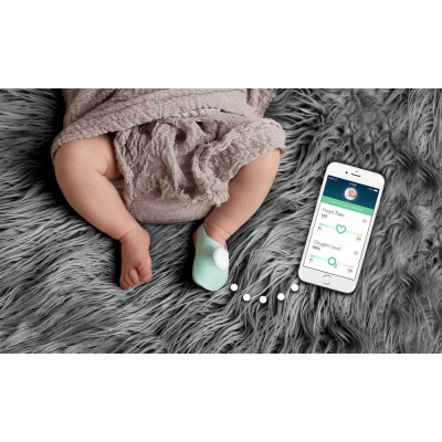Owlet Baby Care - Infant Heart Rate and Oxygen Monitor Smartsock 1